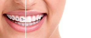 Orthodontist Salt Lake City